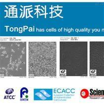 NCI-H1688細胞 人小細胞肺癌細胞NCI-H1688